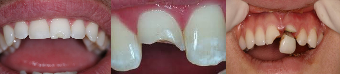 Dental Health Matters - Cottage Hill Dental Care